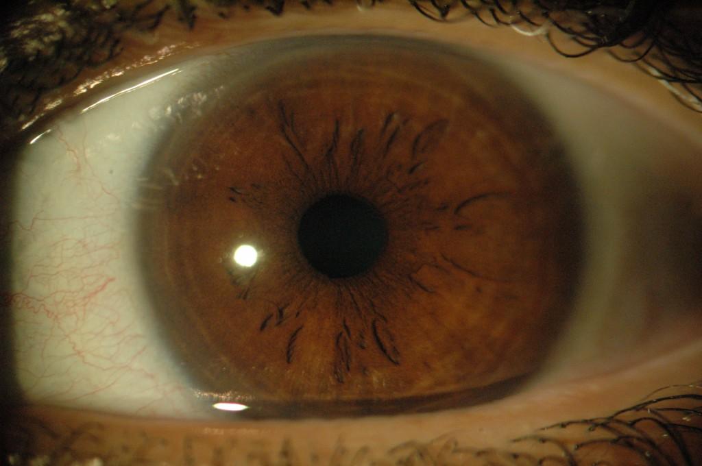 Braunes Auge links